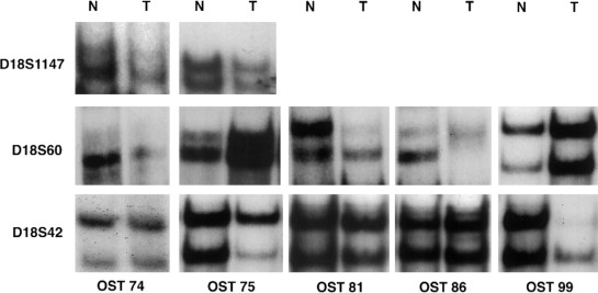 Representative Loh Analysis Of Chromosome 18q Loci In Sporadic Osteosarcoma