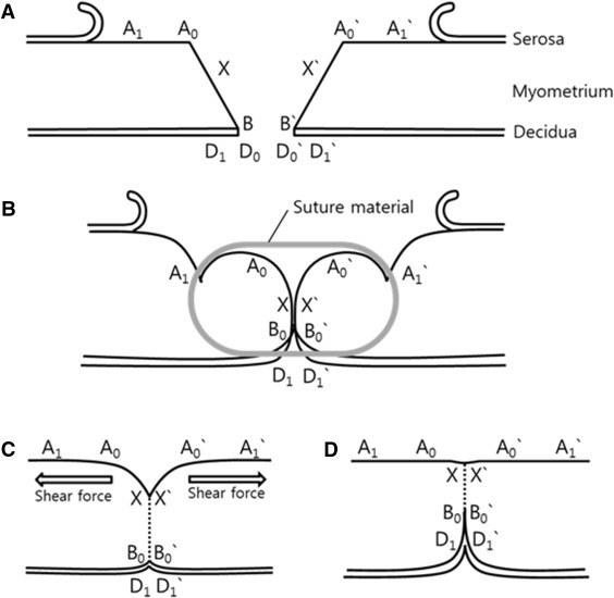 Impact of uterine closure on residual myometrial thickness after cut plane of uterine incision site when closing with single layer locking suture ccuart Image collections