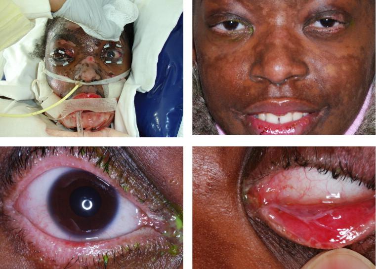 Tinea Eyelid