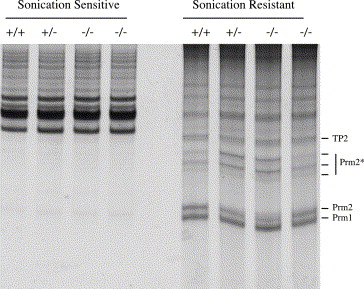 The positions of transition protein 2 (TP2), protamine 1 (PRM1), and mature ...