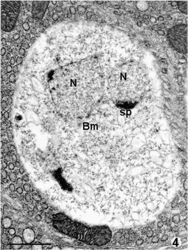 Mature sporont (bm) entering thin-walled sporogony.