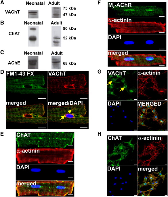 A?C. Western blots of VAChT, ChAT and AChE in neonatal and adult rat ...