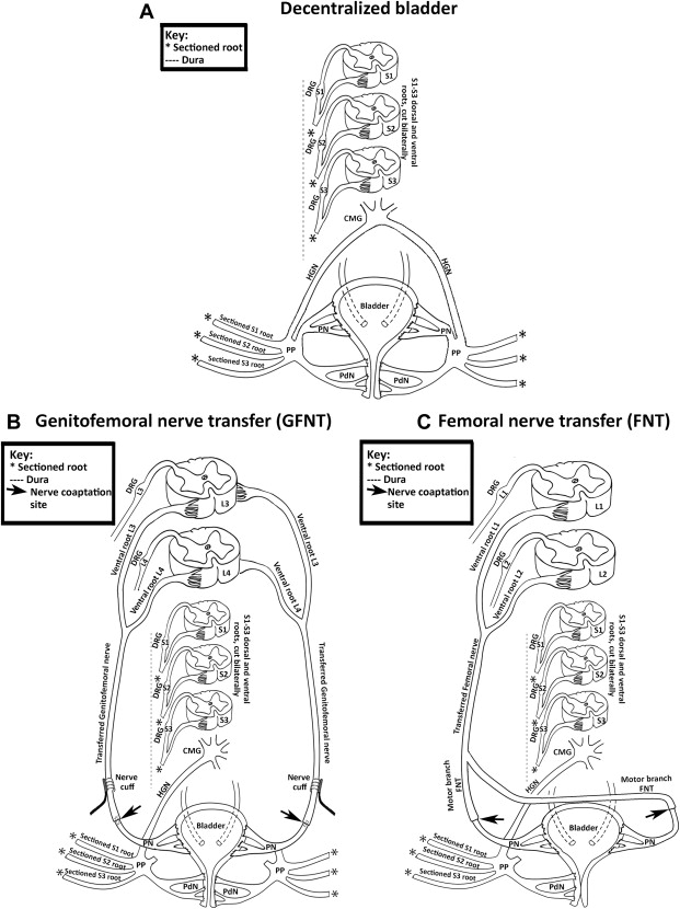 bladder reinnervation using a primarily motor donor nerve (femoral, Muscles
