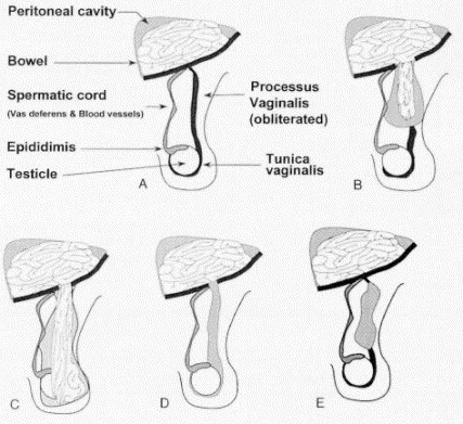 The most common variants of hernias and hydroceles arising from failure of ...