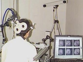 Estimulación magnética transcraneal Ictus