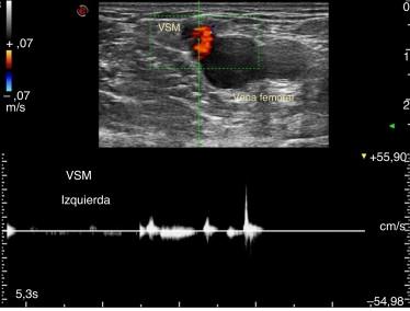 Doppler espectral con corte transversal evidencia una VSM suficiente ante las ...