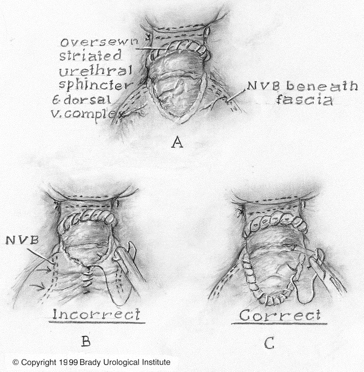Prostate Nodule Normal Psa