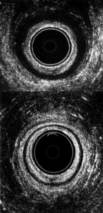 Endoanal ultrasound images of a symptom-free woman aged 56 years (top panel) ...