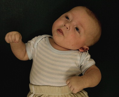 A 4-month old boy with torticollis. The head-tilt in combination with the ...