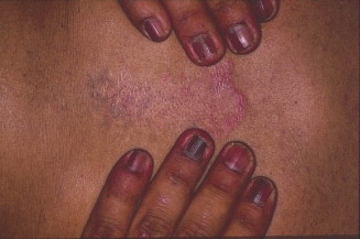 Functional melanonychia due to involvement of the nail matrix in lm of fingernails and discoid lupus erythematosus of chest sciox Image collections