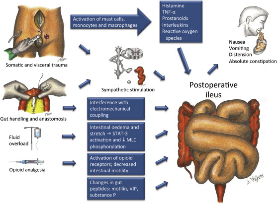 postoperative ileus: recent developments in pathophysiology and, Skeleton