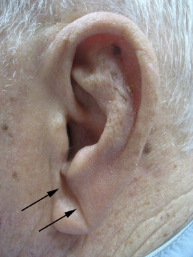 Diagonal Earlobe Crease