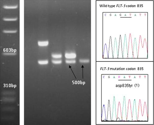 FLT3 mutations detected in leukemic dogs with acute lymphoblastic leukemia.