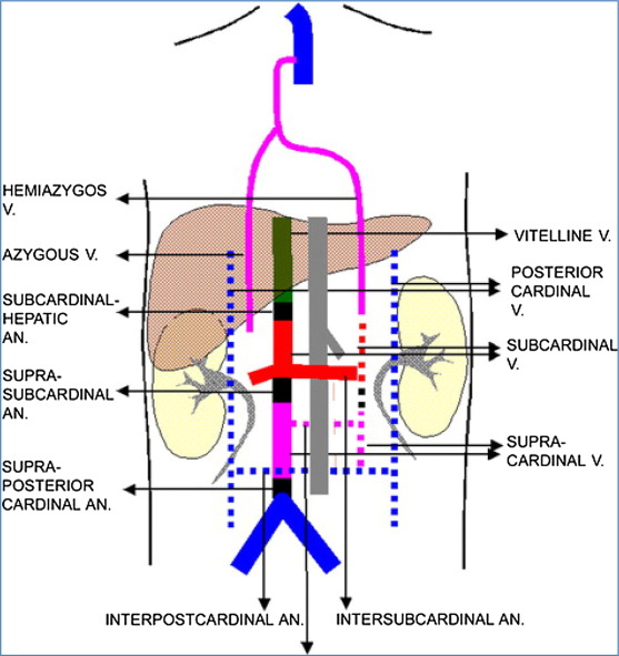 congenital anomalies of the inferior vena cava and iliac veins: a, Human body