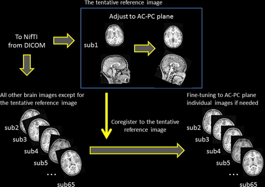 Overview of the protocol for alignment of MRI images.