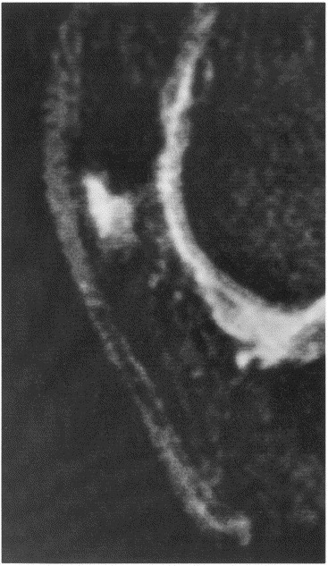 patellar enthesopathy