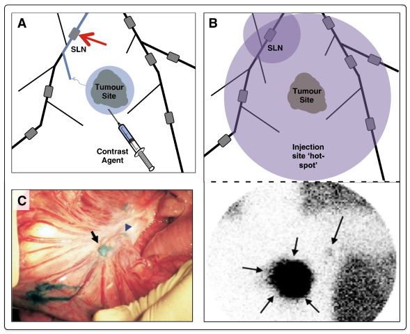 clinical relevance of novel imaging technologies for sentinel, Human Body