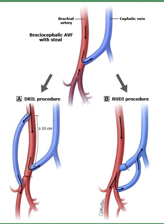 a case of brachiocephalic fistula steal and the emergency, Cephalic Vein