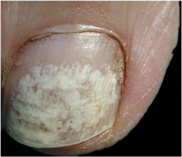 Houston White Damage To Toenails From Polish Nail