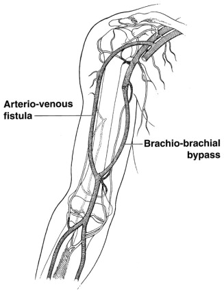absence of the brachial artery: report of a rare human variation, Cephalic Vein
