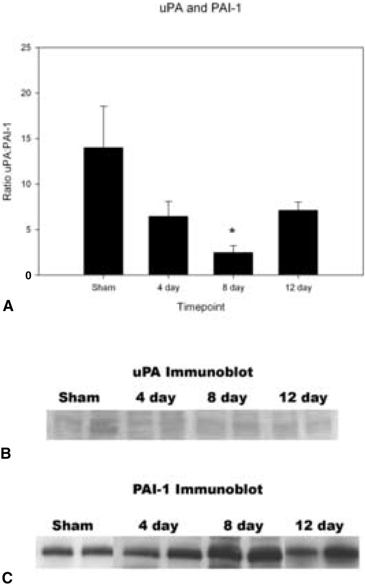 vein wall remodeling after deep vein thrombosis involves matrix urokinase like plasminogen activator upa and plasminogen activator