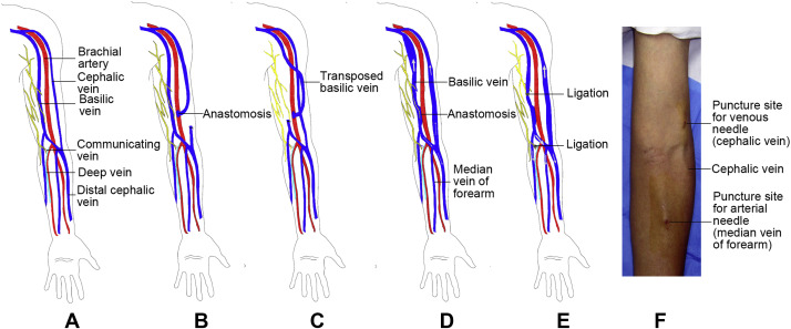 a modified nontransposed brachiobasilic arteriovenous fistula, Cephalic vein