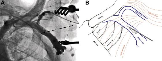 a novel method of axillary venipuncture using the cephalic vein as, Cephalic Vein