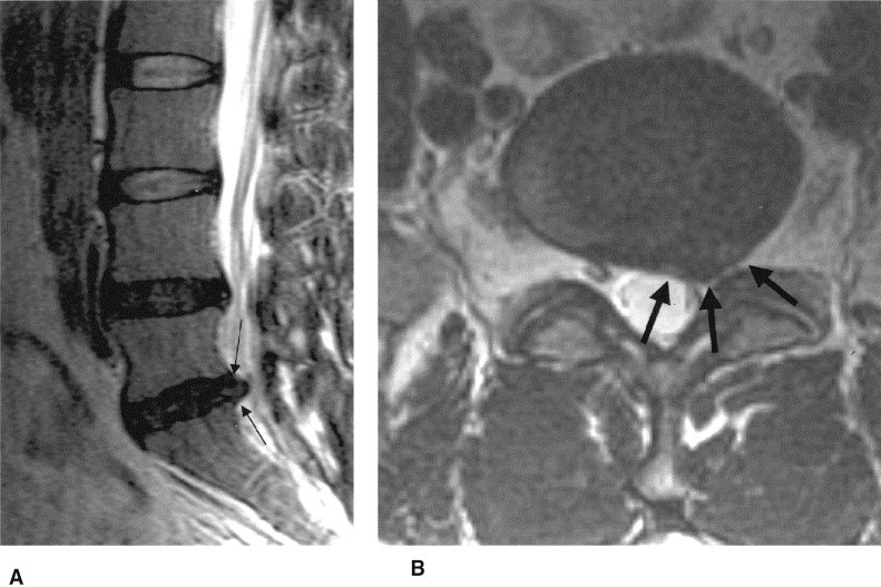 L4-5: A small central disc protrusion with annular tear is present, flattening the  thecal sac anteriorly. Mild degenerative facet joint changes noted. L5-S1: A focal.