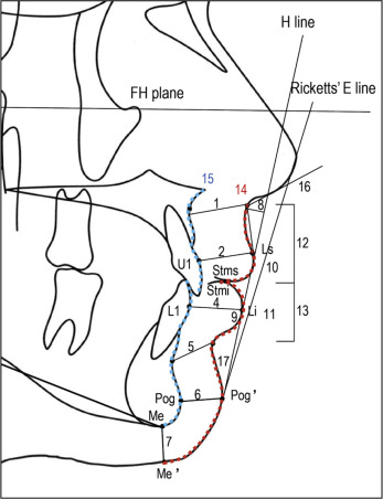 perioral soft tissue evaluation of skeletal class ii division a soft tissue landmarks and definitions of measurement for cephalometric analysis