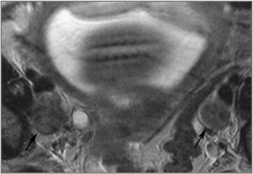 A 66-mm cervical cancer was depicted on MRI. View thumbnail images