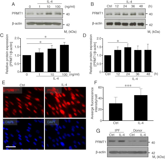 Elevated protein arginine methyltransferase 1 expression regulates ...