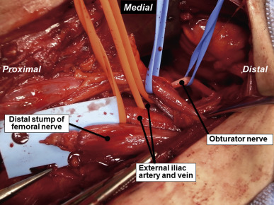 partial obturator nerve transfer for femoral nerve injury: a case, Muscles