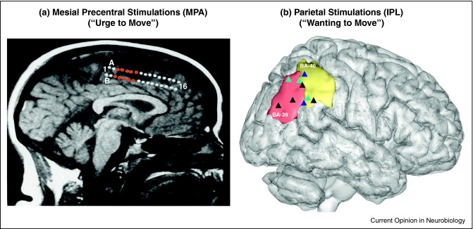 (A) Mesial              Precentral (MPA) sites evoking feelings of 'urge to move'              when electrically stimulated (red circles). Data are shown              for a single subject on the individual MR image of this              subject. Modified from [9􏰀􏰀]. (B) Inferior parietal (IPL)              sites evoking feelings of 'wanting to move' when              electrically stimulated (triangles). Data are shown for 3              subjects after registration of the individual MRI to the MNI              template. One color per subject.Modified from [11].