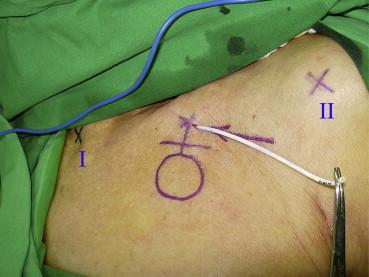coracoid process palpation