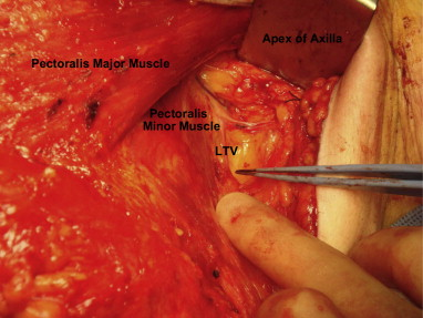 preservation of the lateral thoracic vein in axillary dissection, Cephalic Vein