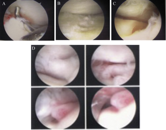 chondromalacia as pathological finding in arthroscopy of the, Skeleton