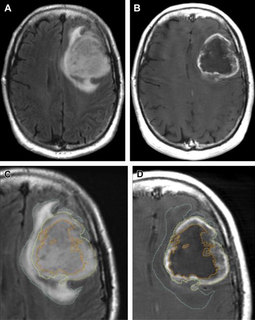 classification of brain tumors pdf free