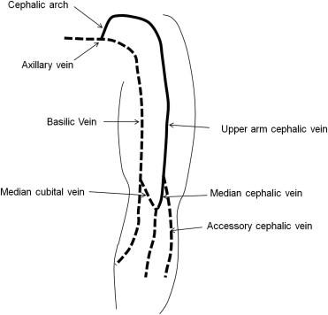 clinical significance of upper-arm cephalic vein patency in, Human body