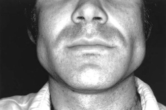 Bilateral parotid swelling: A review