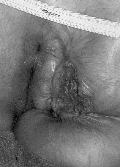 Epidermoid carcinomas are the most common forms of anal canal neoplasms.12 ...