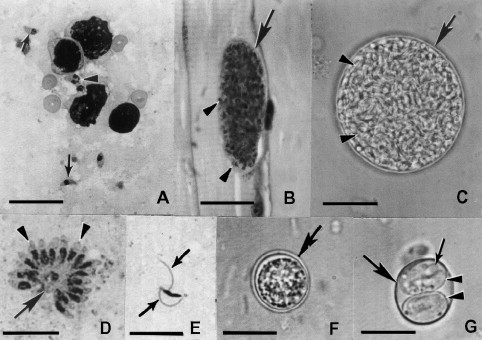 Stages of Toxoplasma gondii