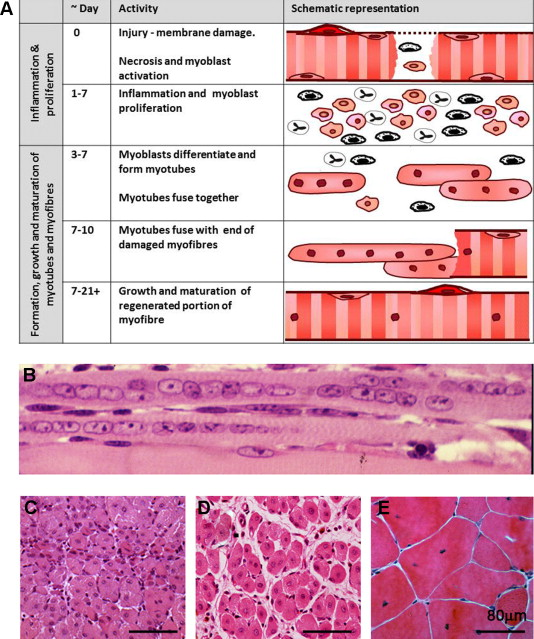 the need to more precisely define aspects of skeletal muscle, Muscles