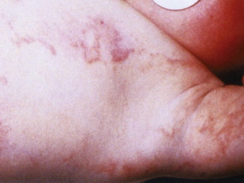 Erythema infectiosum. View thumbnail images. Figure options