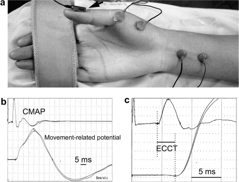 Excitation?contraction coupling time (ECCT) was estimated as an onset ...