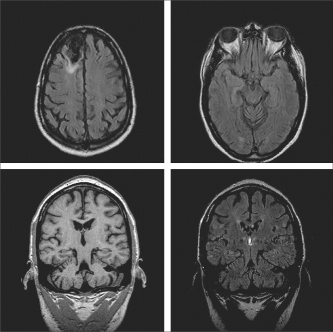 ... a regular MRI protocol showing remote frontopolar encephalomalacia with ...