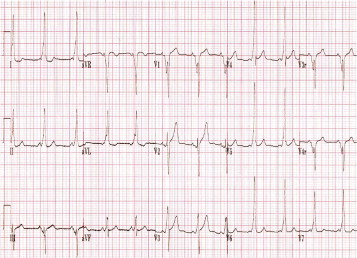 This ECG was obtained in the ED on a 15-year-old boy who came to the ED with ...