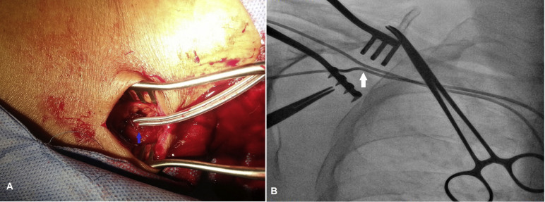 challenges in lead position and stability of single entry through, Cephalic Vein