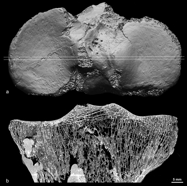 The right tibia from the adult female Neanderthal skeleton La Ferrassie 2. ...
