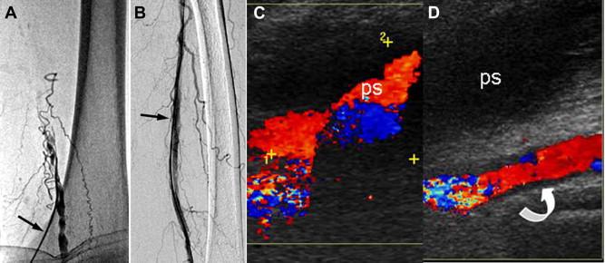 femoral neuralgia
