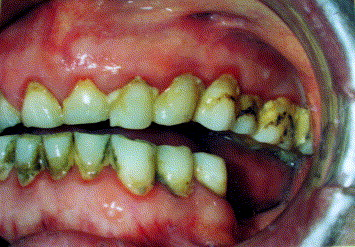 Poor oral hygiene and dental trauma as the precipitating factors ...